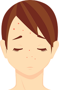 Skin Care for Acne clipart