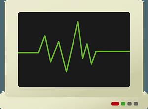 EKG Monitors clipart