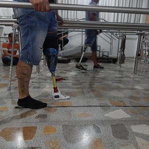 Prosthetic foot 3D Model